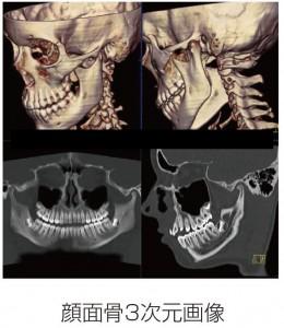 顔面骨3次元画像